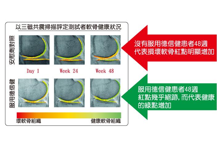 德信健Deubote超凡關節原飲,由哈佛大學參與的臨床研究顯示能改善關節軟骨健康。踢走 腰痛 、膝蓋痛等問題。